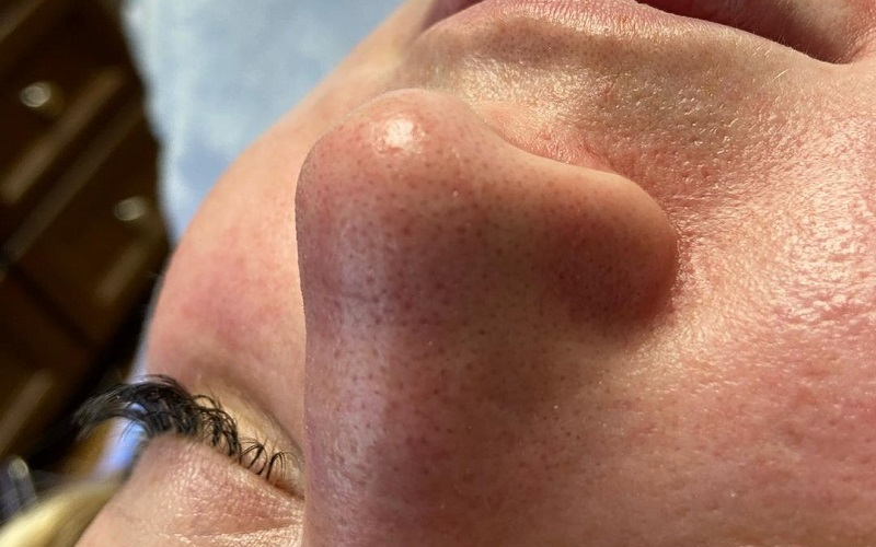 Effective Tips On How To Get Rid Of Blackheads