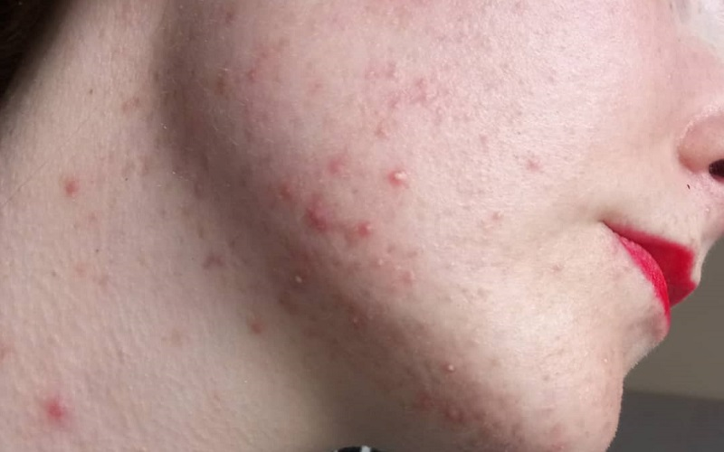 The best guide to dealing with jawline acne